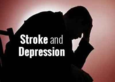 Bleeding stroke survivors at higher risk of depression, dementia: AHA Study