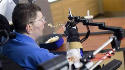 Groundbreaking-Quadriplegic man regains use of arm in medical first