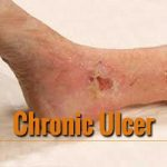 Chronic ulcers can now be treated with a Novel light device