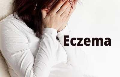 Pre-pregnancy stress level may lead to eczema in future child