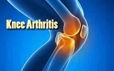 Glucosamine Supplements not effective in Knee or Hip Arthritis Pain :BMJ