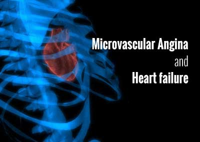How to approach recurrent angina following Angioplasty- find out