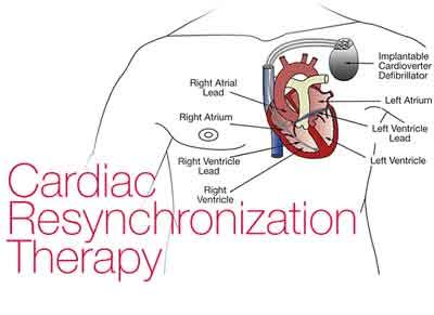 Wireless LV Endocardial Pacing for cardiac resynchronization therapy