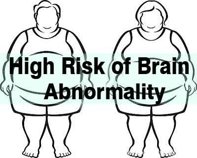 Overweight/obese people with diabetes at increased risk of brain abnormalities