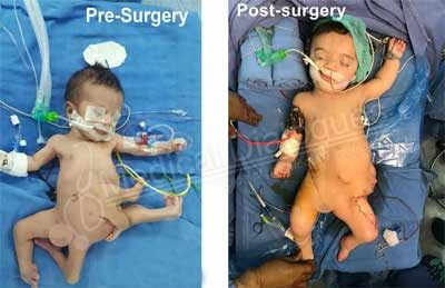 7 months baby with 8 limbs successfully operated at Jaypee Hospital