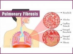 Antibody is effective against radiation-induced pulmonary fibrosis