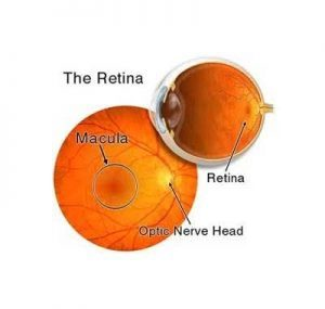 Oral Vitamin A benefits children with retinitis pigmentosa