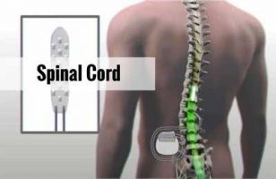 Single radiation sufficiently relieves spinal cord compression symptoms, finds Study