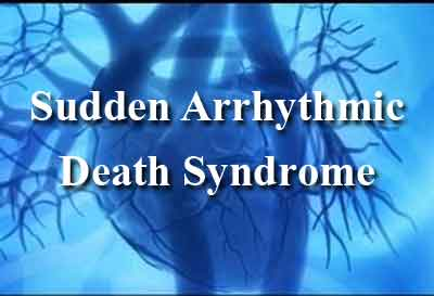 Post-Mortem Genetic Testing in Sudden Arrhythmic Death Syndrome
