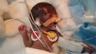 Rare Surgery: Udaipur Doctors operate on world's tiniest baby weighing just 470 grams