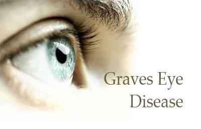 Breakthrough Therapy : Disfiguring eye symptoms diminish in Graves eye disease with teprotumumab