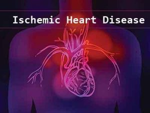 Nearly 25 percent of chronic ischemic heart disease patients dead or hospitalized in 6 months