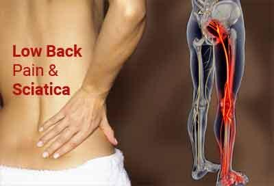 Low back pain and sciatica: Assessment and management, NICE guidelines
