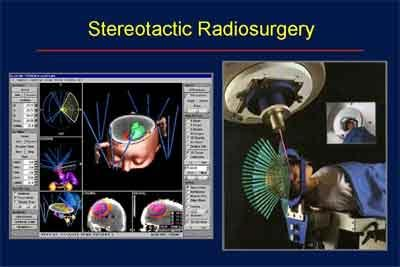 Stereotactic radiotherapy highly effective for kidney cancer: Study