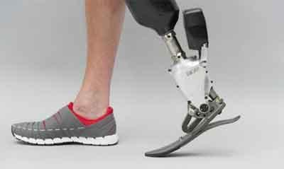 160-kg man walks on prosthetic limb