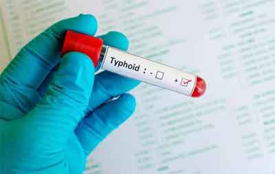 First typhoid conjugate vaccine Okayed by WHO
