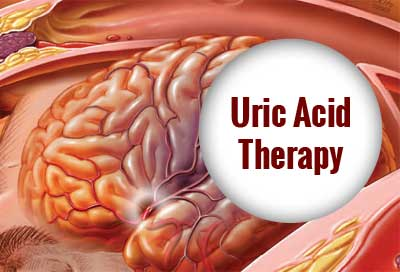 Role of uric acid therapy in prevention of early ischemic stroke progression