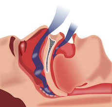 Anti-nausea drug could help treat sleep apnea