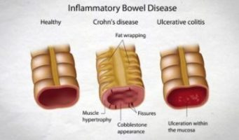 Natural Nitrous Oxide production may  boost healing in  IBD