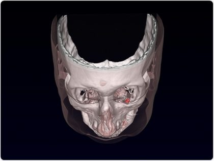 Magnetic implants used to treat Nystagmus: Opthalmology Case Study