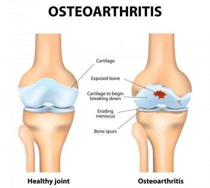 Knee crepitus linked with symptomatic osteoarthritis