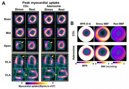PET-MR shows arterial CO2 as potent vasodilator for cardiac stress testing