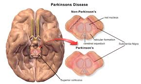 Calcium has a role to play in the development of Parkinson's disease