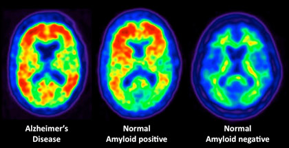 More amyloid in the brain, more cognitive decline: JAMA Neurology
