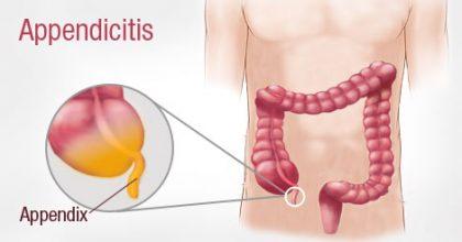 Ruptured Abdominal Aortic Aneurysm Misdiagnosed as Acute Appendicitis