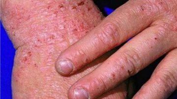 Study analyses link between eczema, cardiovascular disease: British Journal of Dermatology