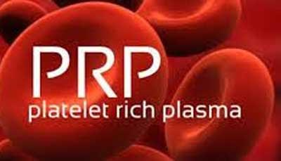 Platelet-rich plasma effective for facial rejuvenation: JAMA