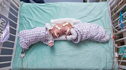 30 Doctors separate twin girls joined at head in an 11 hour surgery