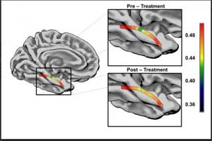 Aphasia recovery via speech therapy related to structural plasticity of the ventral stream