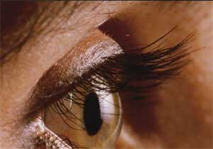 Common Eye injures and their outcomes