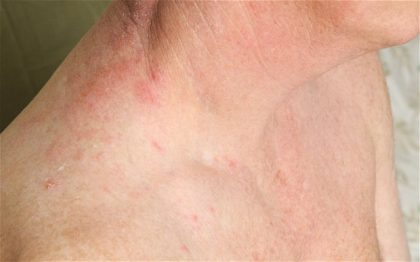 Chickenpox increases risk of heart attack, stroke: JACC