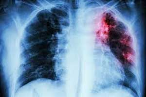 Low levels of vitamin A may fuel TB risk: Clinical Infectious Diseases