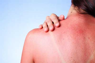SOS Vitamin D after sunburn reduces swelling inflammation: Clinical trial