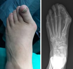 After bunion surgery, immediate x-rays predict recurrence risk