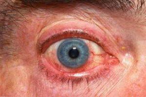 Master molecule behind corneal inflammation identified