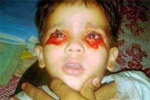 Hyderabad: Three-year-old terrifies parents, doctors by crying tears of blood