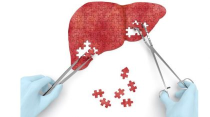 Country's first successful liver transplant from donor of cardiac death performed