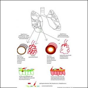 COPD: Changes in the lungs, changes in the microbiome