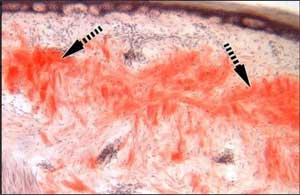 Modified Skin Biopsy in transthyretin familial amyloid polyneuropathy shows promise: John Hopkins Study