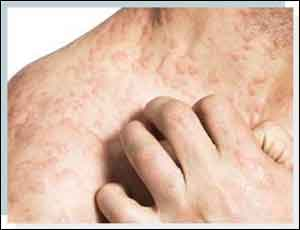 Birch pollens trigger late Skin reactions in patients with atopic dermatitis