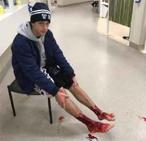 Australian teen's feet bloodied by mystery sea creatures