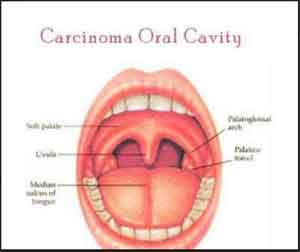 Carcinoma Oral Cavity – Standard Treatment Guidelines