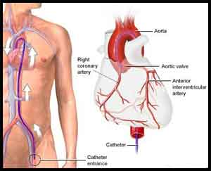 Coronary artery disease in patients undergoing coronary angiography