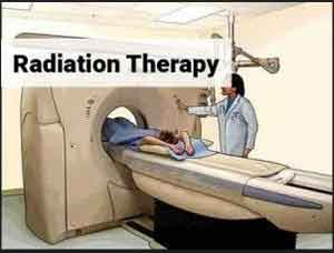Study identifies new cancer treatments that might prevent relapses after radiotherapy