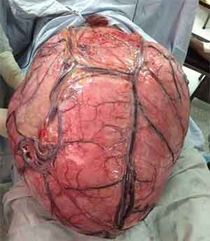 Doctors removes 32 kg uterine tumour- worlds largest