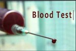 Questions you must know about fasting before blood tests